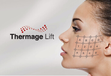 Thermage Lift Thẩm Mỹ SIAN