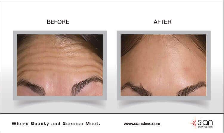 Chích Botox tại Thẩm mỹ SIAN