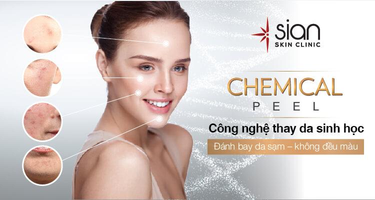 Công nghệ Chemical Peel tại Thẩm mỹ SIAN