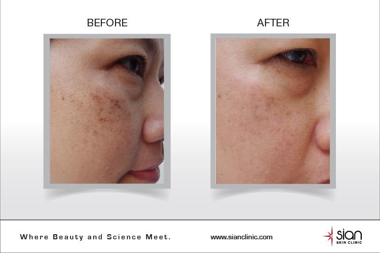 True Skin công nghệ vàng điều trị nám, tàn nhang