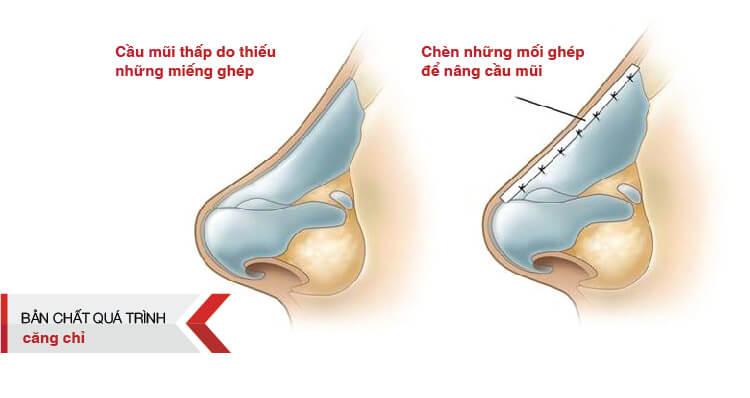 Quá trình nâng mũi bằng chỉ Ultra Vlift tại Thẩm mỹ SIAN