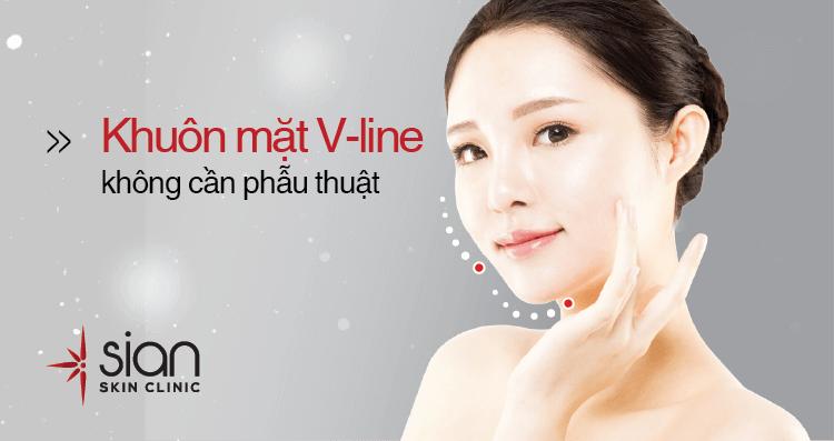 Khuôn mặt V-line không cần phẫu thuật