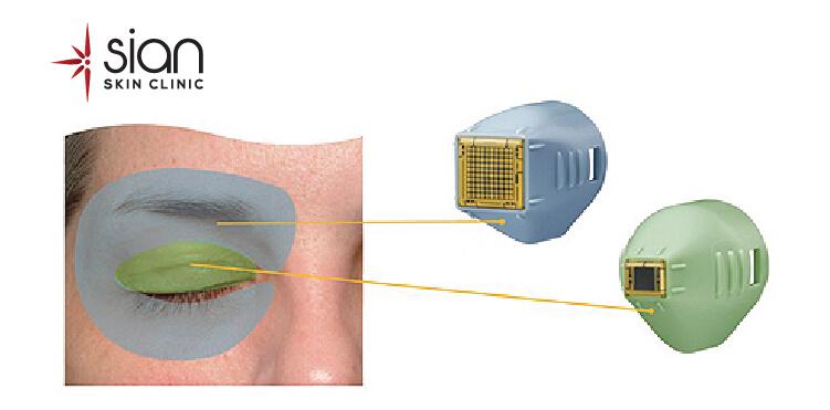 Công nghệ xóa nhăn vùng mắt tại SIAN