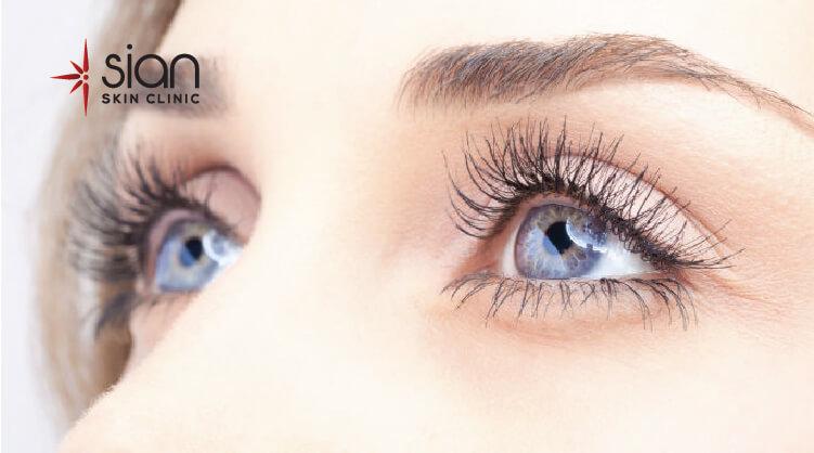 Xóa nhăn vùng mắt New Thermage hiệu quả tại SIAN