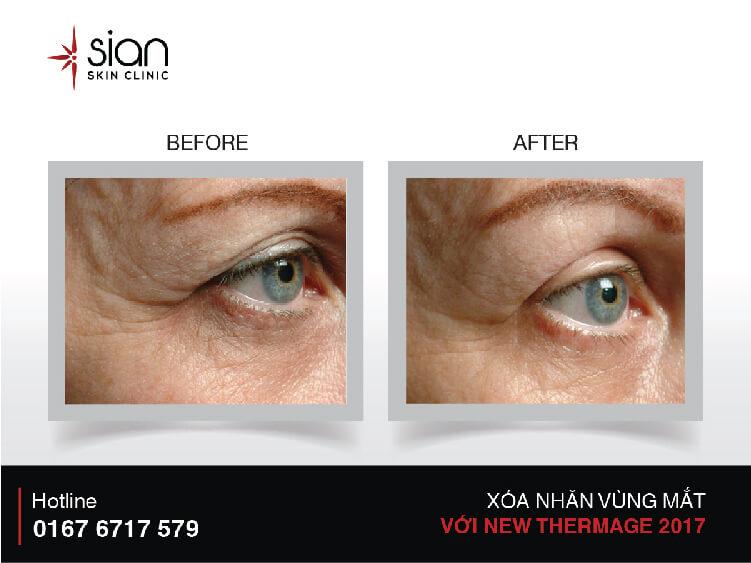 Trước và sau xóa nhắn vùng mắt tại SIAN
