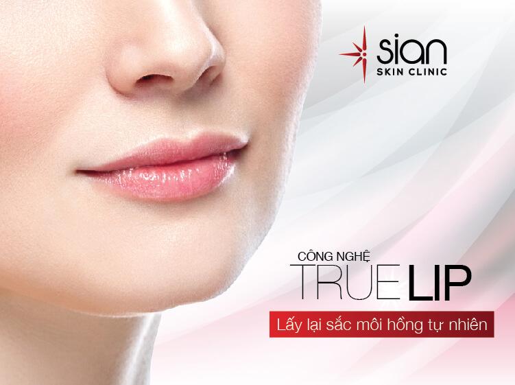 Công nghệ True Lip điều trị môi thâm tại SIAN