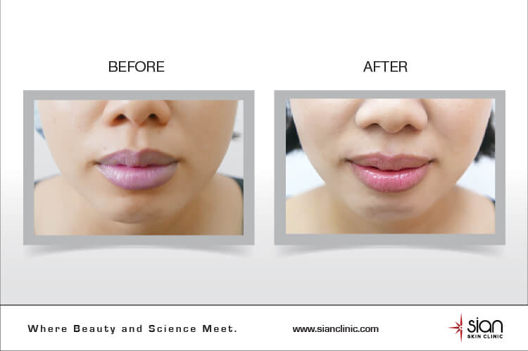 Hiệu quả True Lip điều trị môi thâm tại SIAN