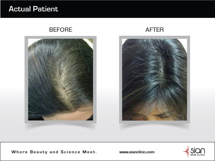 Trước và sau điều trị rụng tóc P-hair Therapy tại SIAN