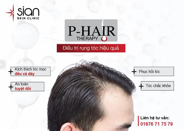 Điều trị rụng tóc P-hair Therapy hiệu quả tại SIAN