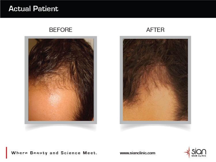 Trước và sau điều trị rụng tóc ở nam giới tại SIAN