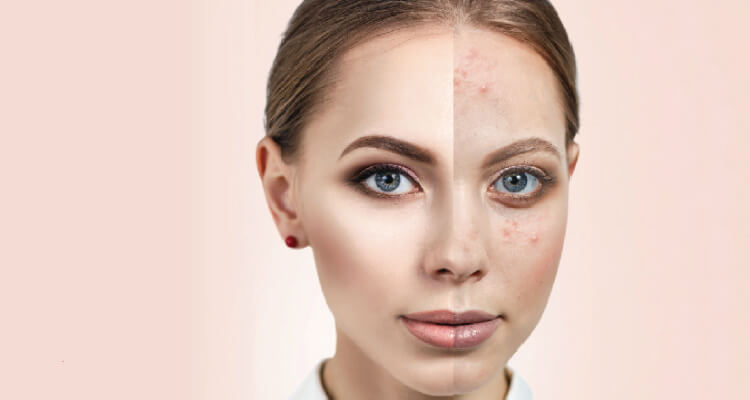 Anti Acne Facial Treatment - Chăm sóc da mụn