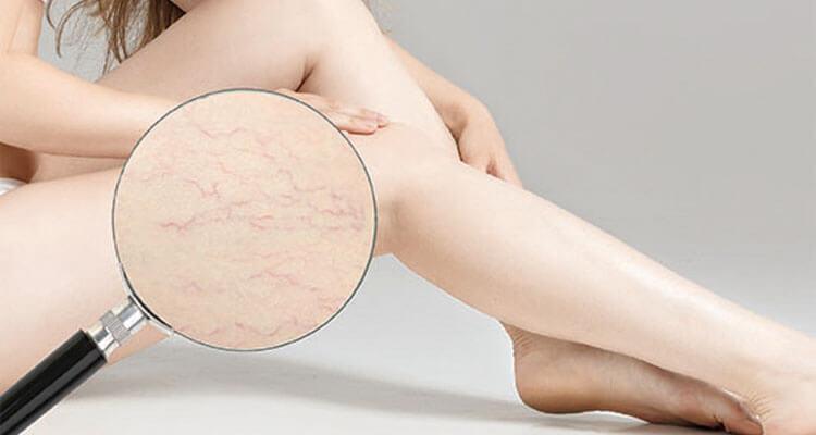 Trị tĩnh mạch dưới da vùng chân hiệu quả tại SIAN