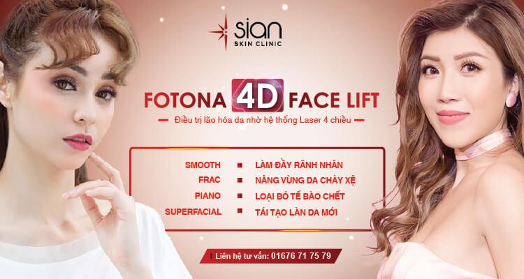 FOTONA 4D FACE LIFT điều trị lão hóa bằng Laser 4 chiều tại SIAN