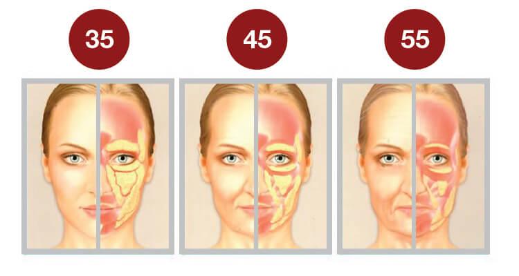 Hiệu quả của căng da bằng chỉ Silhouette Soft tại SIAN clinic