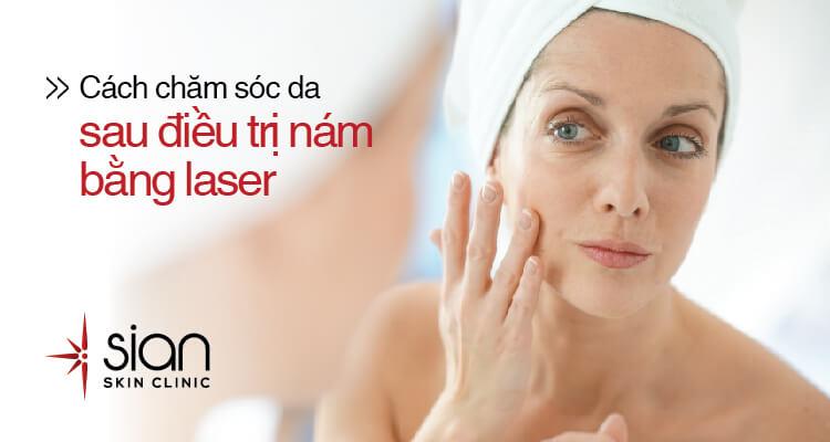 điều trị nám da bằng laser với sian clinic
