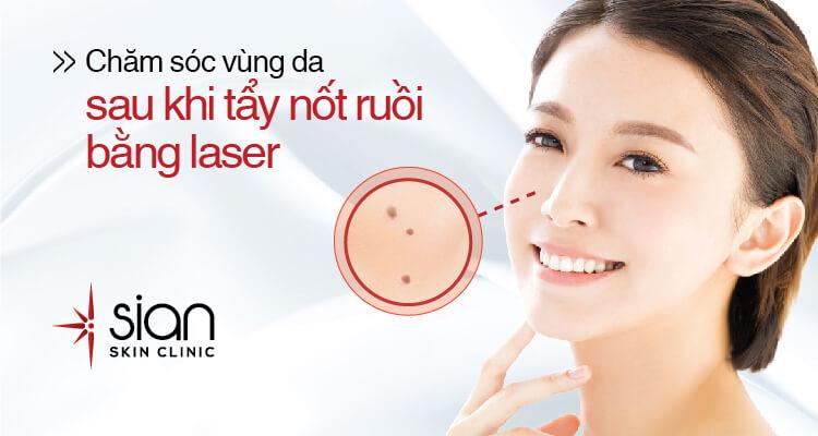 tẩy nốt ruồi bằng laser tại sian clinic
