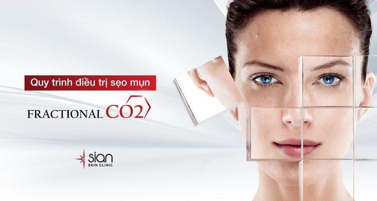 QUY TRÌNH ĐIỀU TRỊ SẸO MỤN BẰNG LASER VỚI LIỆU PHÁP FRACTIONAL CO2