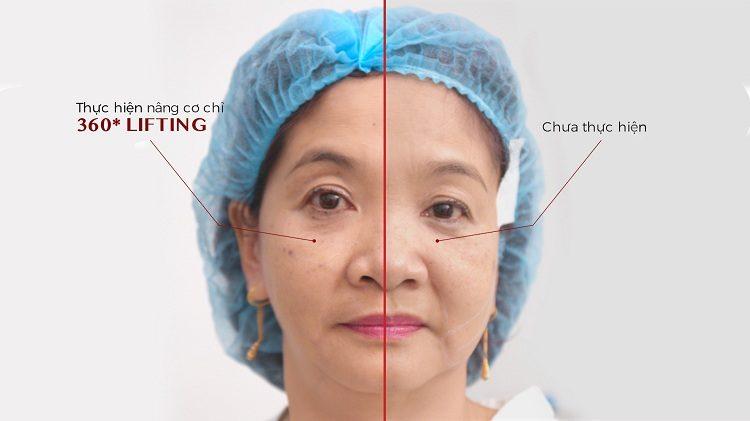 hình ảnh thật của bệnh nhân sau khi nâng cơ chỉ 360o Lifting