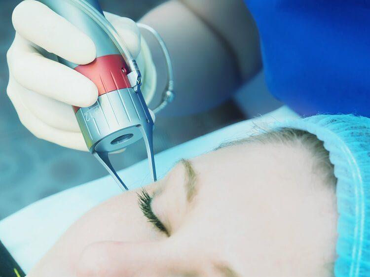 điều trị mụn, sẹo bằng Laser Fractional Co2 hiệu quả tại Sian Clinic