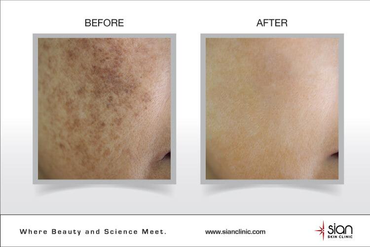 trước và sau khi điều trị nám tại Sian