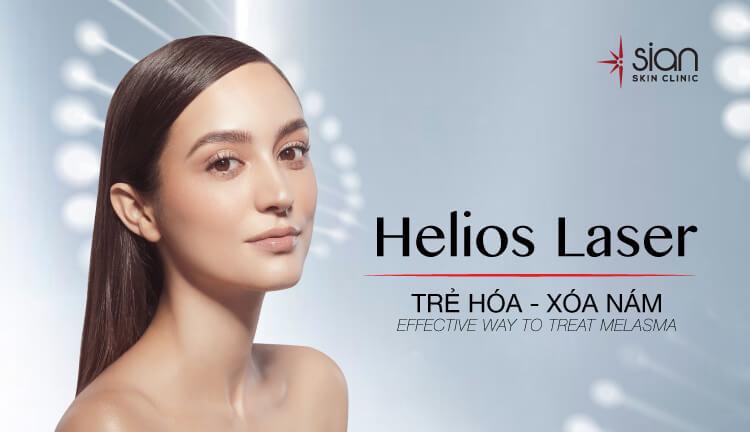 helios laser trị nám hiệu quả nhất hiện nay