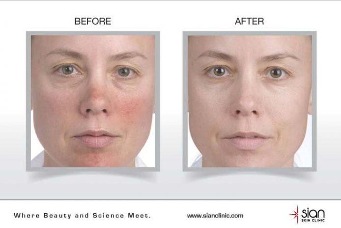 da mặt thâm sạm và cách cải thiện hiệu quả