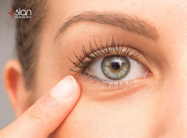 ngăn ngừa nhăn bọng mắt