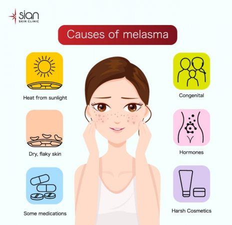 Ngăn ngừa nám da và tàn nhang - 6 nguyên nhân
