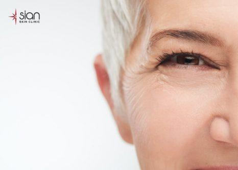 nếp nhăn mắt vfa cách khắc phục