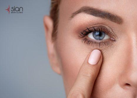 nguyên nhân gây lão hóa vùng mắt