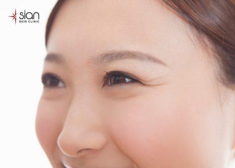 nhăn đuôi mắt hình thành do nguyên nhân nào